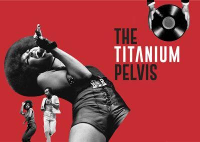 The Titanium Pelvis